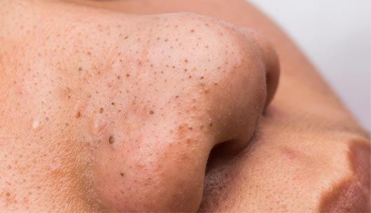 Acne Types - Blackheads