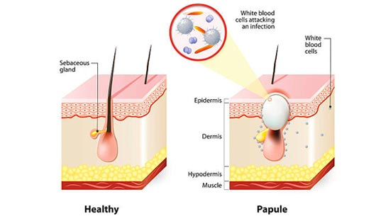 Acne Types - Papules
