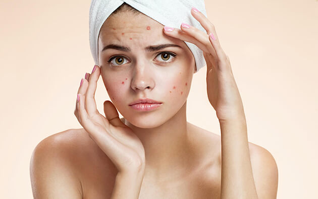 Does Excess Iron Provoke Acne