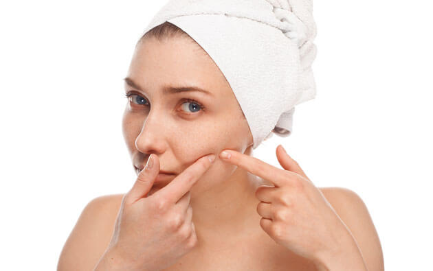 Low Humidity in Winters Causes Acne