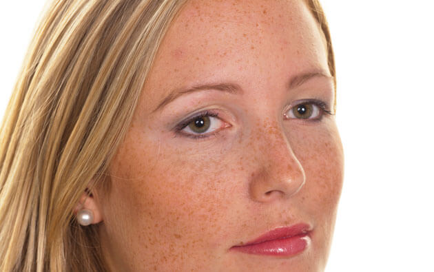 5 Ways To Get Rid Of Hyperpigmentation