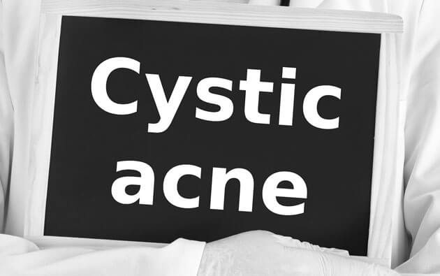 4 Things You Should Know About Cystic Acne