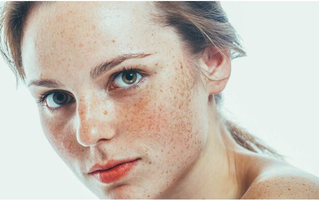 What are the Various Dangers and Risks Posed by Acne Scar Surgery