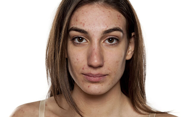 What are the Four Most Common Types of Acne