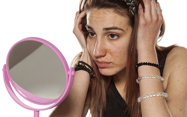 Psychological Impact of Acne on Teenagers