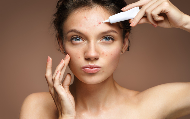 Is Acne a Contagious Skin Condition