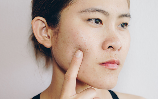 Prevent Cheek Acne using AcneStar